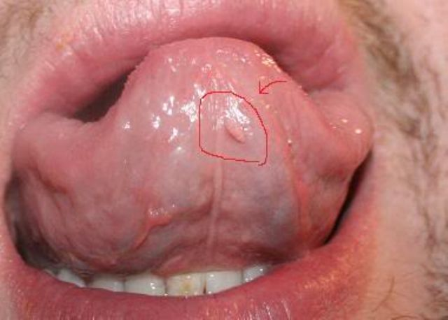Hpv Warts On Gums pics